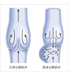 A下肢静脈瘤ではありませんか_r5_c2