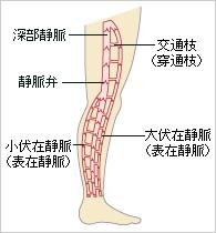 A下肢静脈瘤ではありませんか_r3_c3