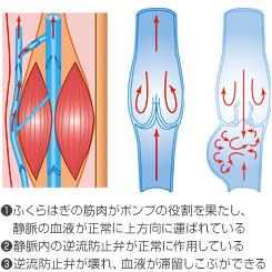 ストッキング 下肢 静脈 瘤